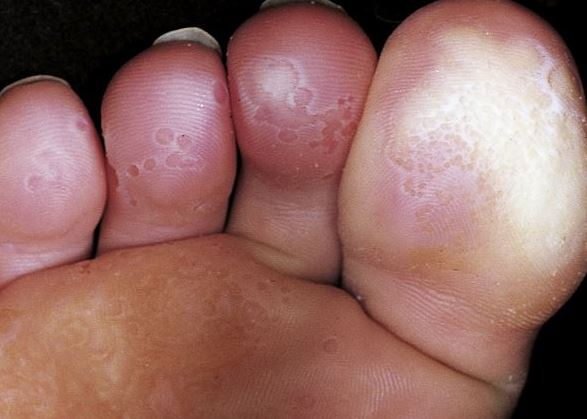 Pitted Keratolizis